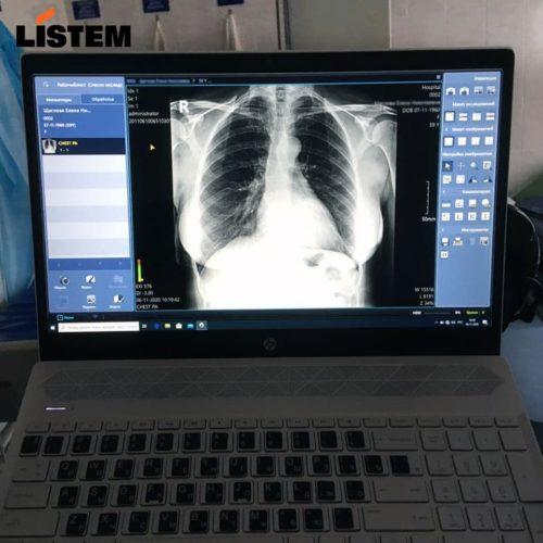 Цифровой снимок с мобильного рентген аппарата