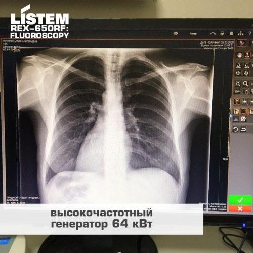 Рентгеновский снимок сделанный на рентген-аппарате с генератором 64кВт