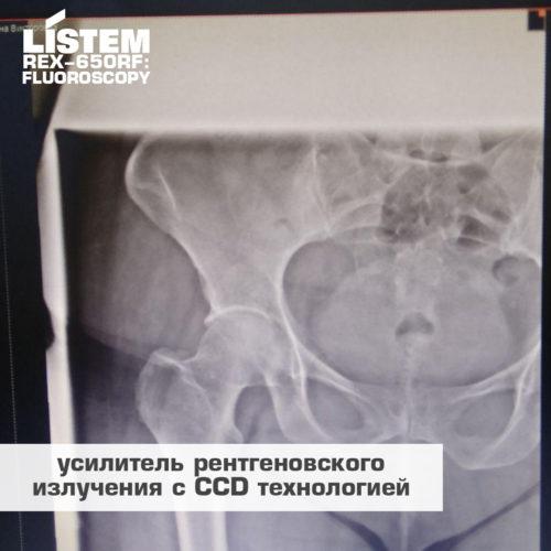 Усилитель рентгеновского излучения с CCD технологией