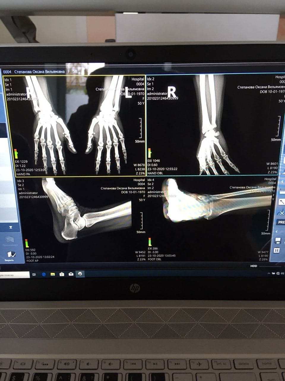 Мобильный рентген аппарат Listem DMH-325 в г. Петрозаводск
