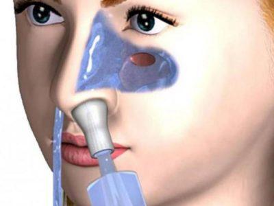 """Промывание носа методом """"Кукушка"""""""