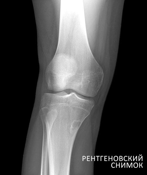 Рентгеновский снимок сустава